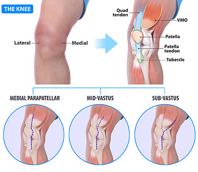 Knee incisions Fig
