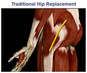 Direct Superior Total Hip Replacement South Bend, IN | Hip